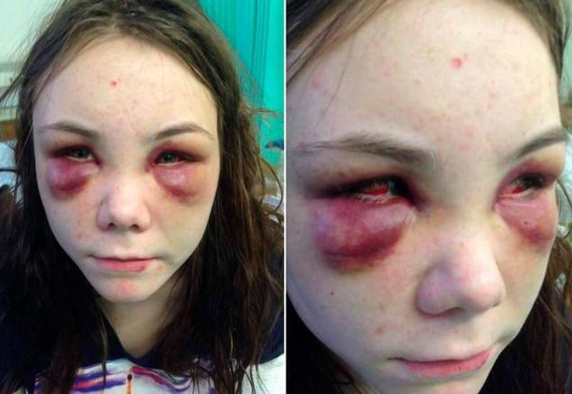 brutal attack teen girl beaten urinated on forced to act like a dog. Black Bedroom Furniture Sets. Home Design Ideas