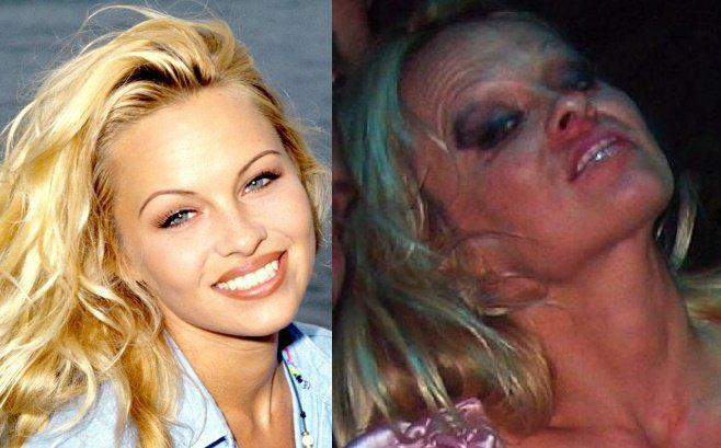 Celebrity pics before and after drugs abuse