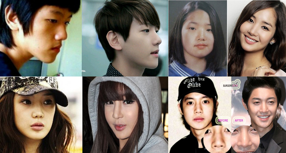 13 Shocking Before Amp After Photos Of Korean Celebrities