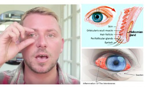 How To Naturally Cure Eye Irritation