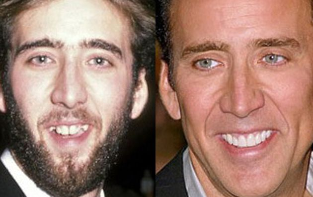 17 Celebrities Who Totally Have Fake Teeth