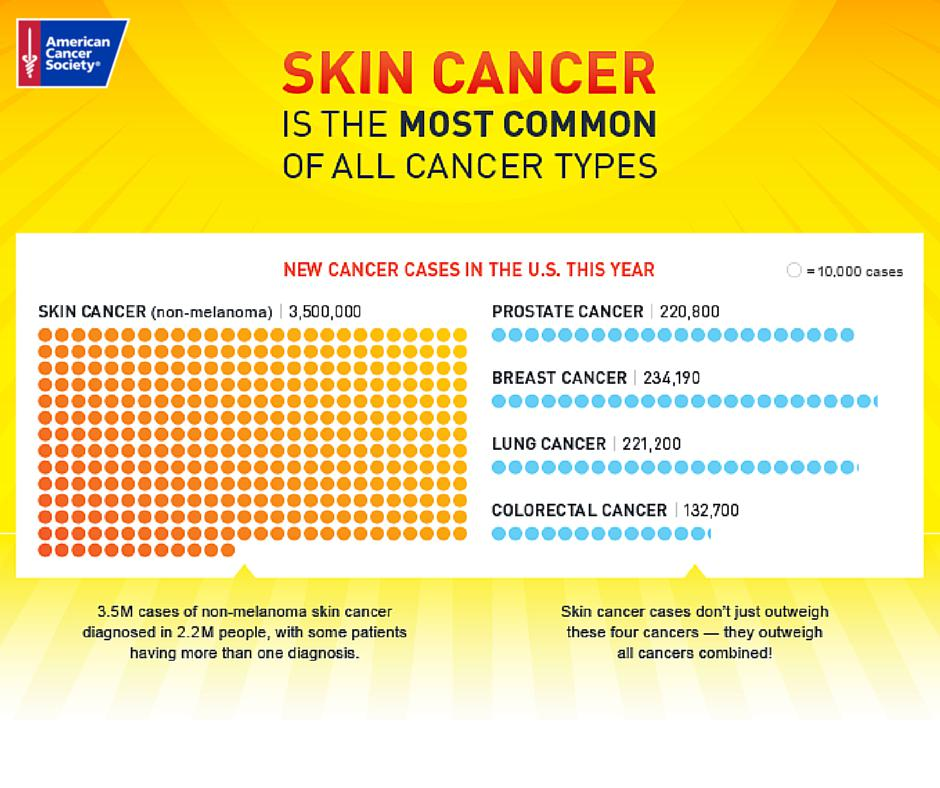 an essay on skin cancer The skin cancer is one of the most popular assignments among students' documents if you are stuck with writing or missing ideas, scroll down and find inspiration in the best samples skin cancer is quite a rare and popular topic for writing an essay, but it certainly is in our database.